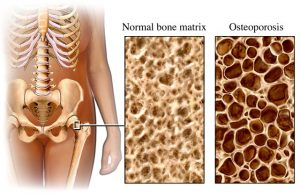 Moving toward a prevention strategy for osteoporosis by giving a voice to a silent disease